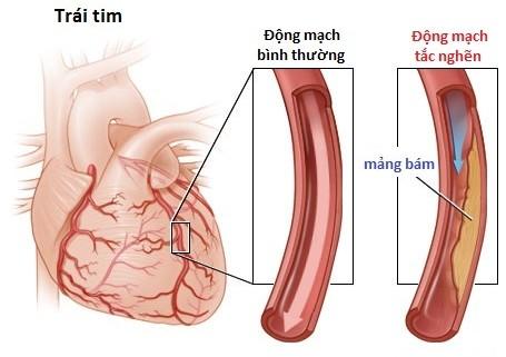 Biến chứng nguy hiểm của bệnh co thắt động mạch vành