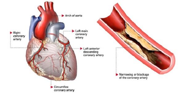 Bệnh co thắt động mạch vành và những điều cần biết