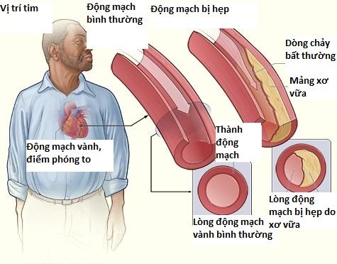 Nguyên nhân gây bệnh mạch vành