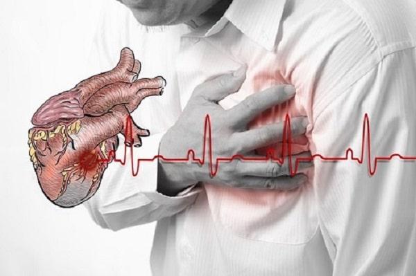 Bệnh thiếu máu cơ tim khám ở đâu tốt?