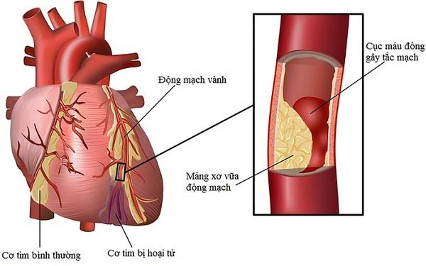 Mối nguy hại từ bệnh mạch vành - Chữa bệnh mạch vành ở đâu hiệu quả