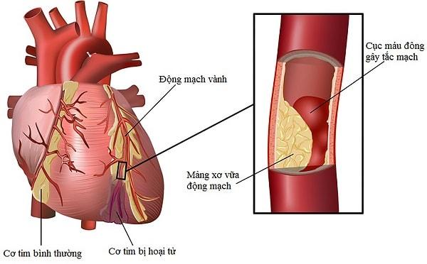 Mối nguy hại của bệnh mạch vành