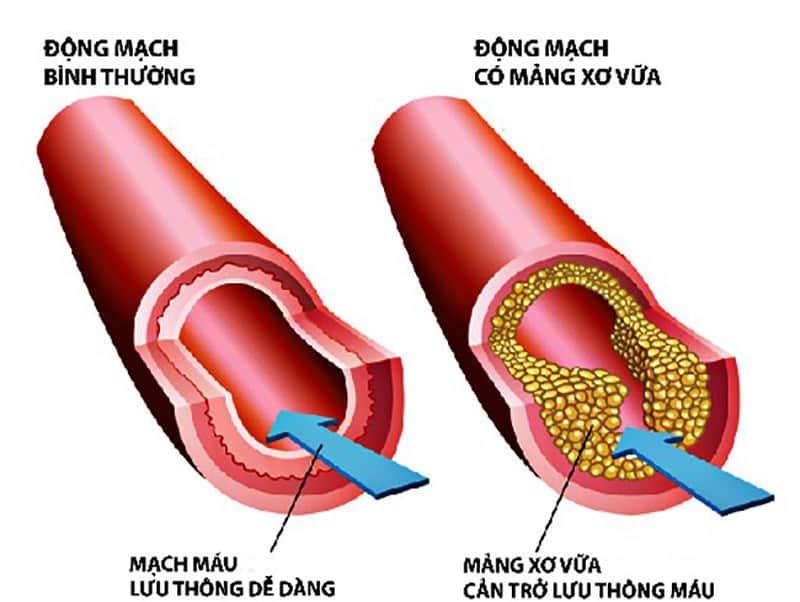 Xơ vữa động mạch là gì