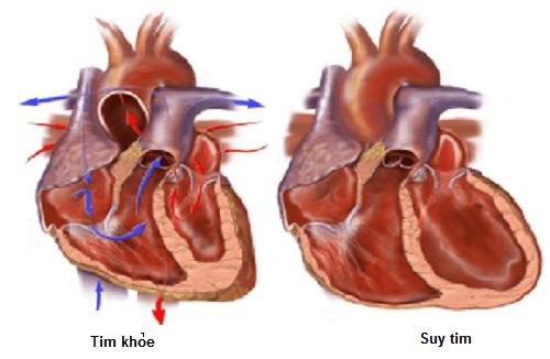Biến chứng của suy tim rất nguy hiểm