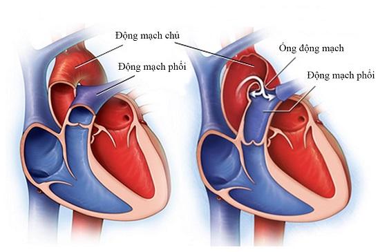 Động mạch là gì