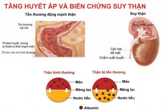 Cao huyết áp có thể gây suy thận