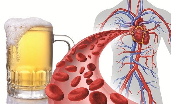 rượu bia và bệnh tim mạch