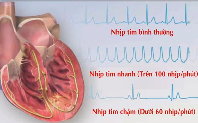 rối loạn nhịp tim ở người già