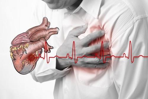 Triệu chứng thiếu máu cơ tim không thể bỏ qua